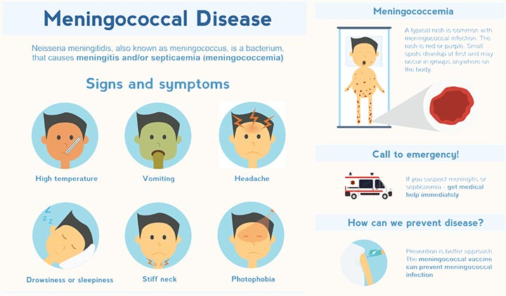 Meningococcemia contagious and fatal: Know the symptoms and