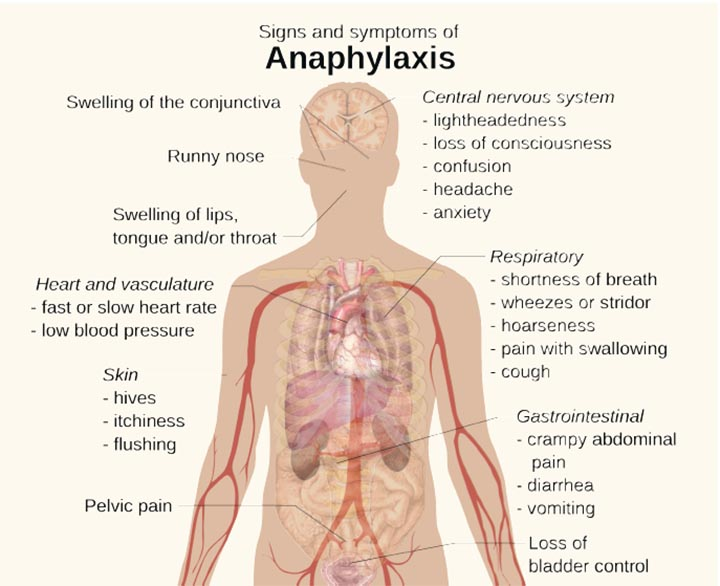 Anaphylactic Shock A Life Threatening Reaction Businessmirror