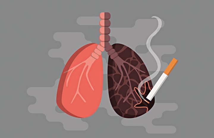 Lung Cancer: Men's No  1 Cancer Killer | BusinessMirror